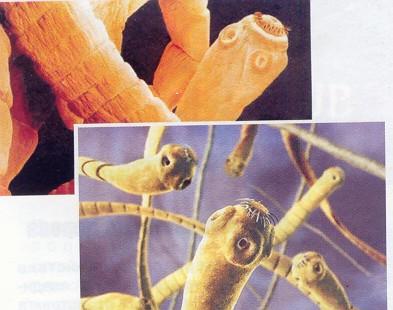 паразиты в носу человека